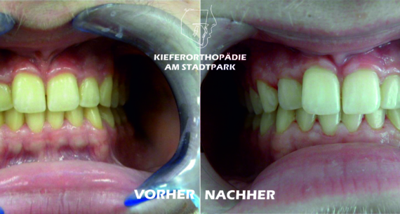 Bleaching – Zahnaufhellung der natürlichen Zähne